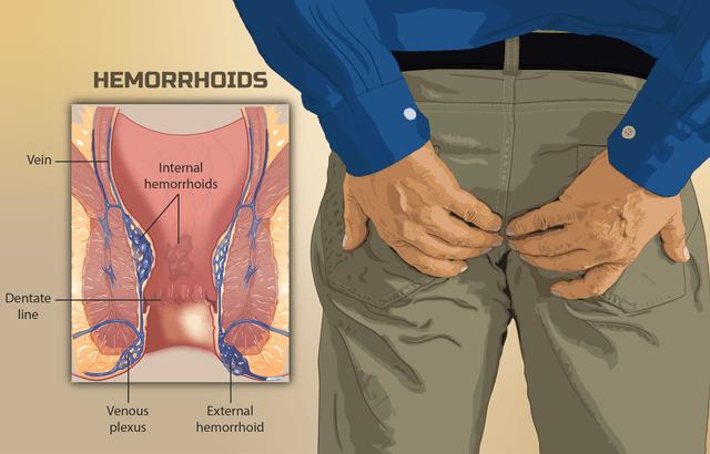 What to eat in hemorrhoids disease?